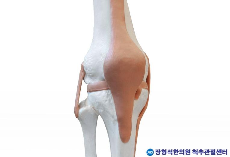 휴가철 야외활동, '무릎인대 손상' 주의보